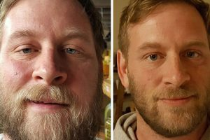 10 Before & After Pictures Showing What Happens When You Stop Drinking